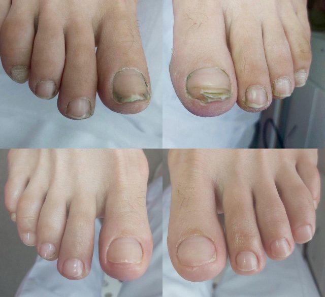 обработка стоп и ногтей